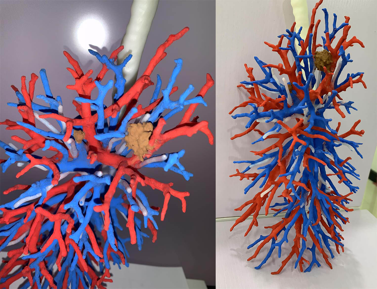 左上肺尖后段磨玻璃结节(蓝色:肺动脉,红色:肺静脉,白色:支气管,棕色:磨玻璃结节)